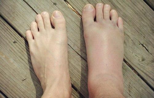 сколько длиться ушиб ноги