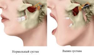 Как распознать вывих челюсти и лечить