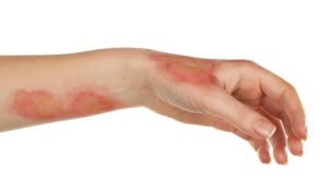 Как и чем можно лечить ожог горячим растительным маслом
