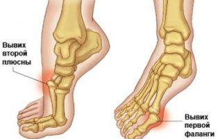 Симптомы и лечение вывиха стопы