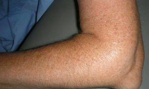 Как и чем можно лечить ушиб локтя при падении