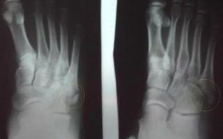 Сколько заживает перелом плюсневой кости стопы