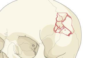 Лечение и последствия перелома свода черепа