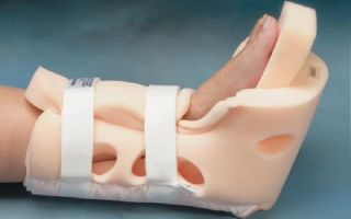 Как лечится деротационный сапожок при переломе шейки бедра