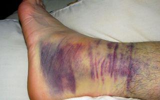 Реабилитация и лечение двухлодыжечного перелома со смещением и без