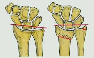 Как лечится перелом шиловидного отростка локтевой кости