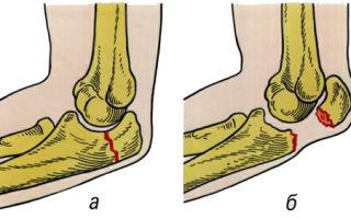 Как лечится перелом локтевого отростка и реабилитация после него