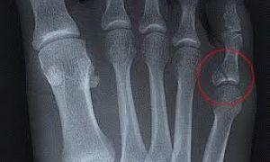 Перелом мизинца на ноге: что делать и как быстро вылечить