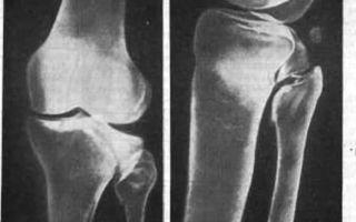 Сколько лечится перелом мыщелка большеберцовой кости