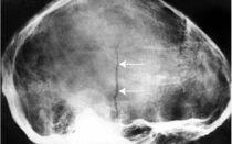 Какова выживаемость при переломе основания черепа