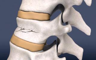Симптомы и лечение патологического перелома