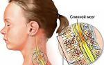 Симптомы и лечение вывиха шейного позвонка