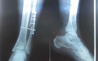 Как лечится перелом большой берцовой кости