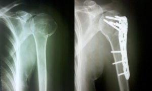 Лечение при переломе головки плечевой кости