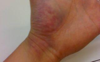 Как лечить ушиб кисти руки