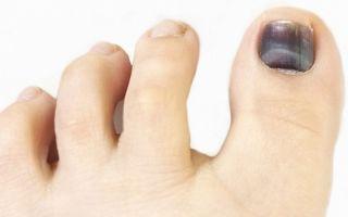 Как и чем можно лечить ушиб ногтя большого пальца ноги