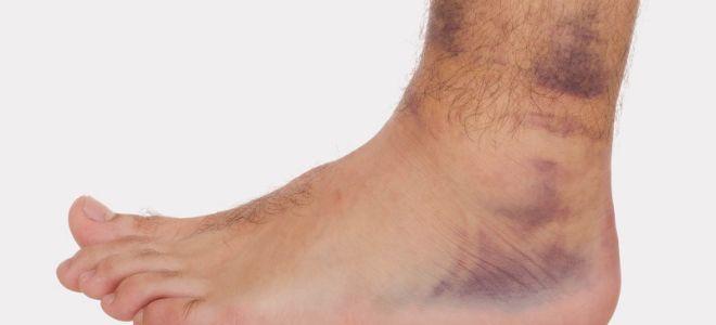 Каким должно быть лечение вывиха голеностопного сустава