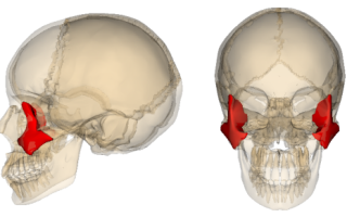Симптомы и лечение перелома скуловой кости