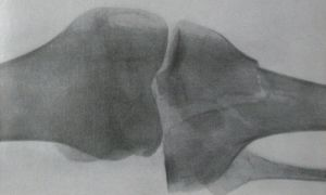 Как лечится перелом большеберцовой кости