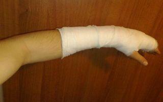 Как можно ускорить срастание перелома костей руки