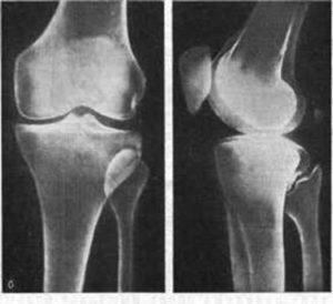 Перелом большеберцовой кости