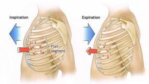 Перелом грудной клетки
