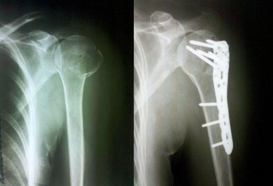 Оскольчатый перелом плечевого сустава реабилитация мазь для суставов из тайланда со змеиным ядом