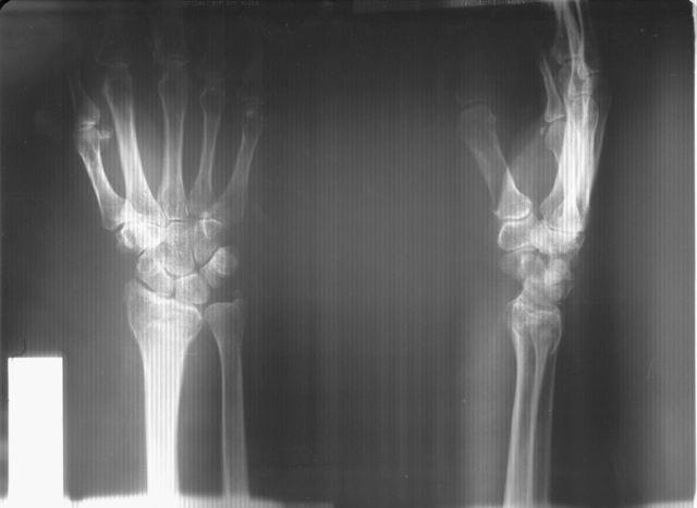 как лечить перелом руки в запястье