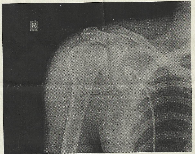 Перелом шейки плеча: лечение, сроки восстановления у пожилых людей