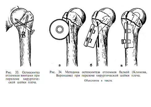 Перелом хирургической шейки плеча без смещения лечение