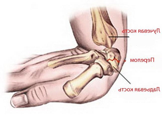 Увеличение лучезапястного сустава мозаичная хондропластика коленного сустава