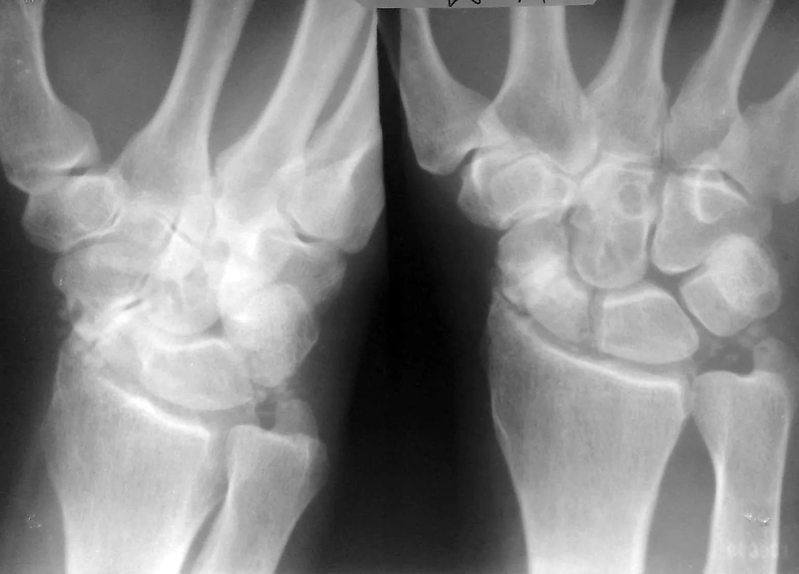 Лечение перелома лучезапястного сустава протез тазобедренного сустава zimmer