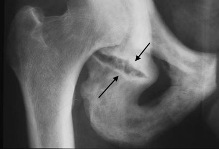 Перелом седалищной кости со смещение и без: последствия, лечение ...
