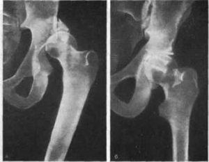Перелом вертлужной впадины