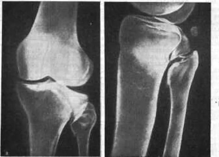Внутрисуставный перелом берцовой кости