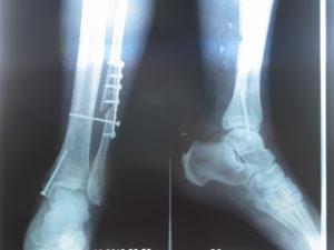 Особенности лечения переломов большой берцовой кости у ребенка