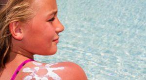 Как лечить солнечный ожог у ребенка
