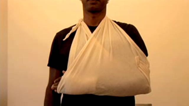 Как правильно наложить фиксирующую повязку на руку при переломе