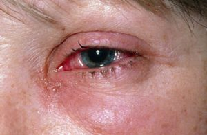 Как оказать первую помощь при химическом ожоге глаза