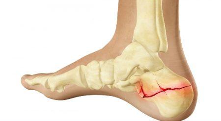 Перелом пяточной кости со смещением и без: лечение, реабилитация