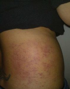 Почему появляются синяки после антицеллюлитного массажа