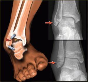 Что делать, если после перелома лодыжки отекает нога