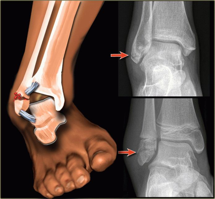 парафин после перелома ноги