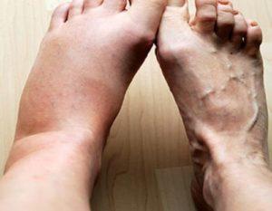 Как быстро избавиться от отека после перелома лодыжки