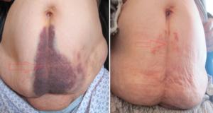 гематома после операции и ее лечение
