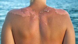 восстановить кожу после солнечного ожога