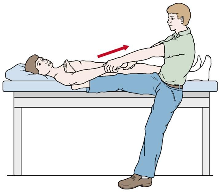 Вправление вывиха плеча различными методиками: инструкция