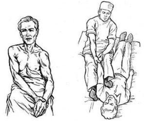 вправление вывиха плеча различными методиками