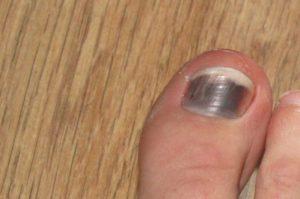 Как должна лечиться гематома под ногтем пальца руки или ноги