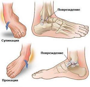 лечение суставов аппаратами милта